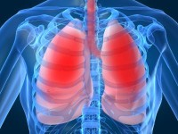 Что мы знаем о туберкулезе